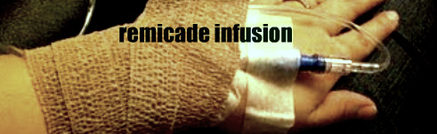 How Fast Does Remicade Work for Colitis